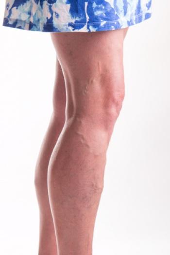 La operación de la desaparición de las venas en los pies la narcosis