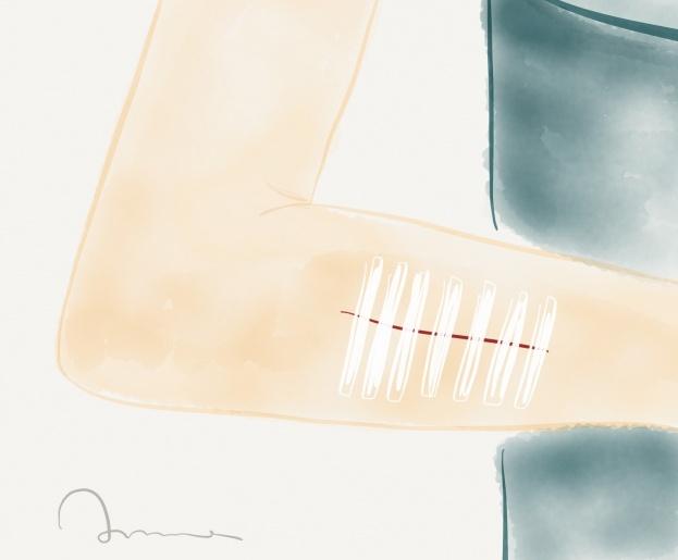 steristrip